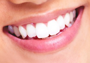 teeth whitening prices