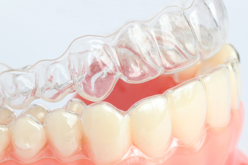 Who Can Benefit From Invisalign?