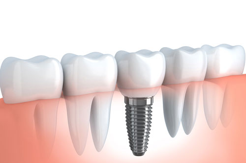 How To Care For Your Dental Implants